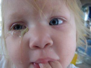 Лечение простуды с нагноением глаз