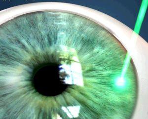 Глаукома лазерная терапия глаза thumbnail