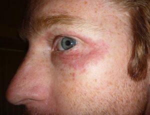 Покраснение кожи вокруг глаз