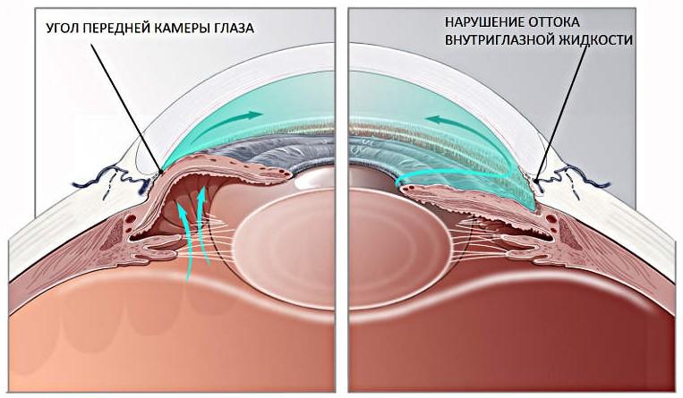 Подготовка к лазерной десцеметогониопунктуре