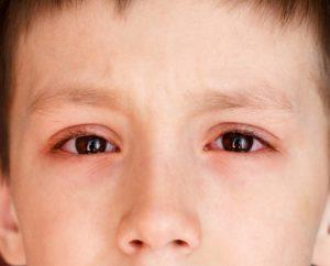 Глаза краснеют и опухают