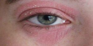 Патологическая краснота и шелушения возле глаз