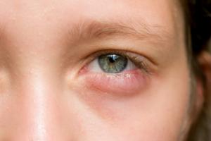 Воспалительные заболевания наружных отделов глаз