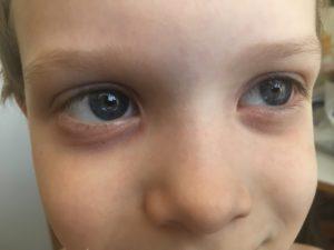 Почему у ребенка появились мешки под глазами