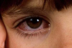 Комаровский о лечении конъюнктивита у детей
