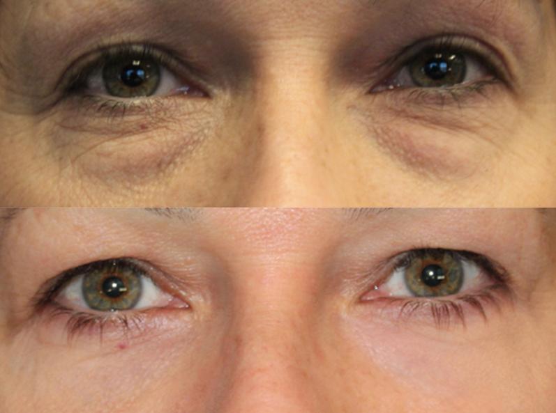 Эффект – фото до и после