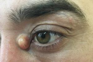 Киста нижнего века глаза лечение