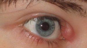 Шишки на веке глаза как лечить 26