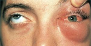 Под глазам и опухло и красное что это thumbnail
