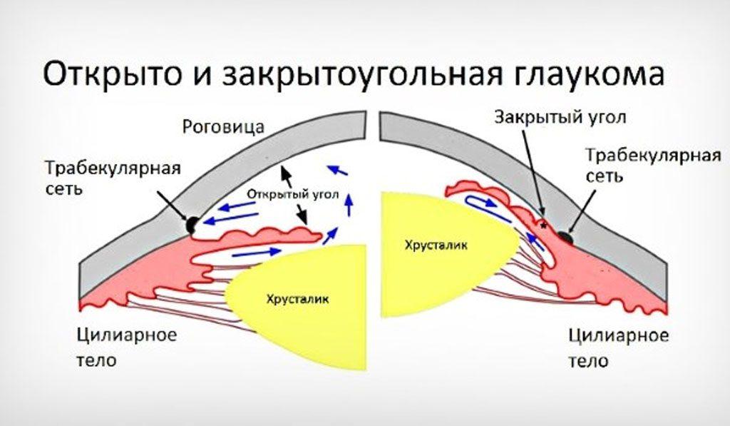 Что такое глаукома закрытоугольная