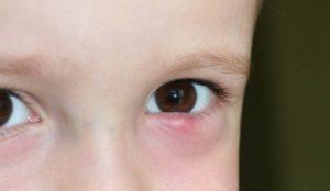 Халязион нижнего и верхнего века у ребенка