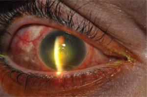 Герпетический кератит глаз