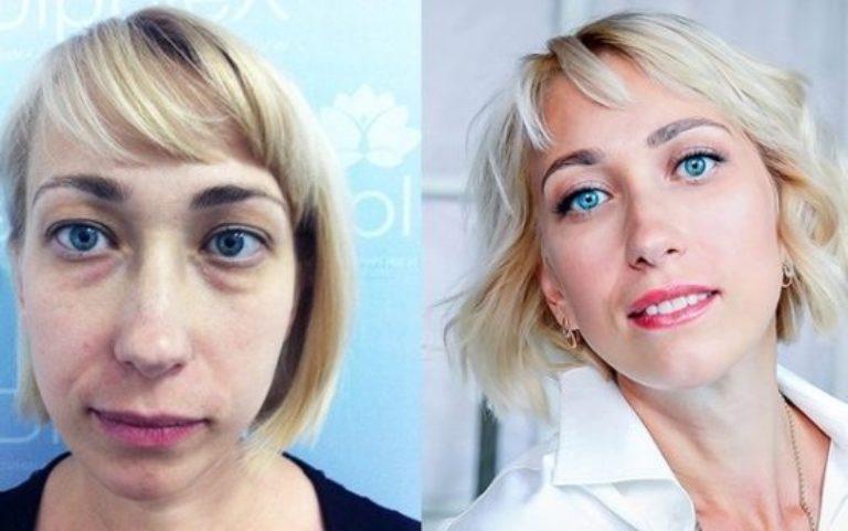 Правильный макияж после блефаропластики