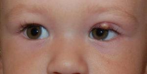 глаз болит