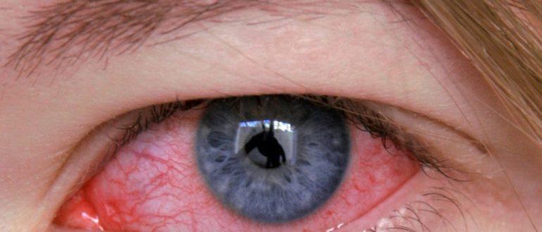 глаз больной