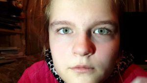 Скрытое косоглазие у детей и взрослых