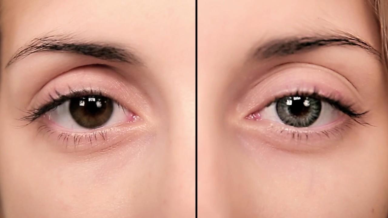Фото изменения цвета глаз у детей