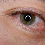 Что делать, если чешутся уголки глаз