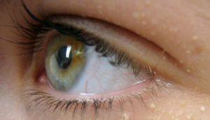 Шишки на веке глаза как лечить 5