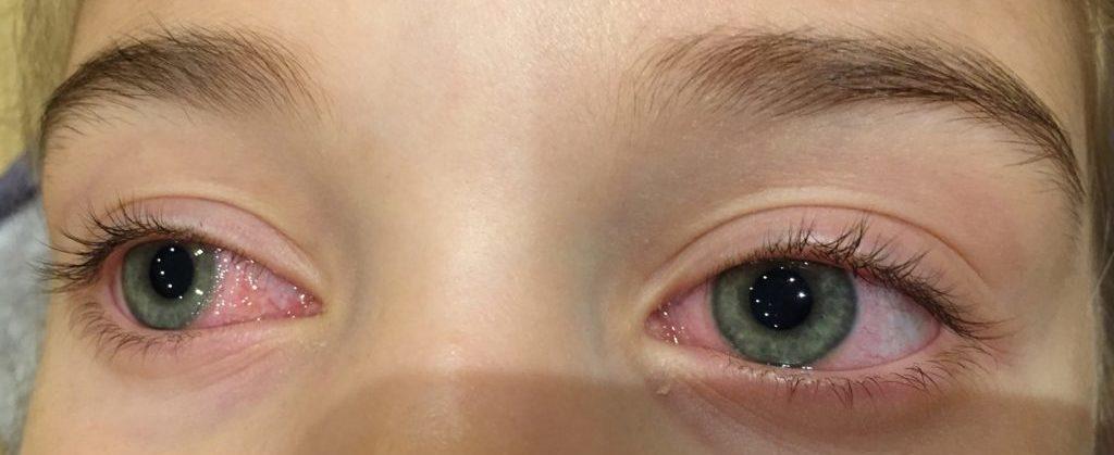 Лечение конъюнктивита у ребенка в 3 года