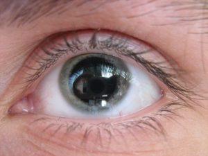 Стеклянные глаза у ребенка