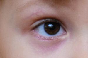 У ребенка синяки и круги под глазами - что говорит Комаровский