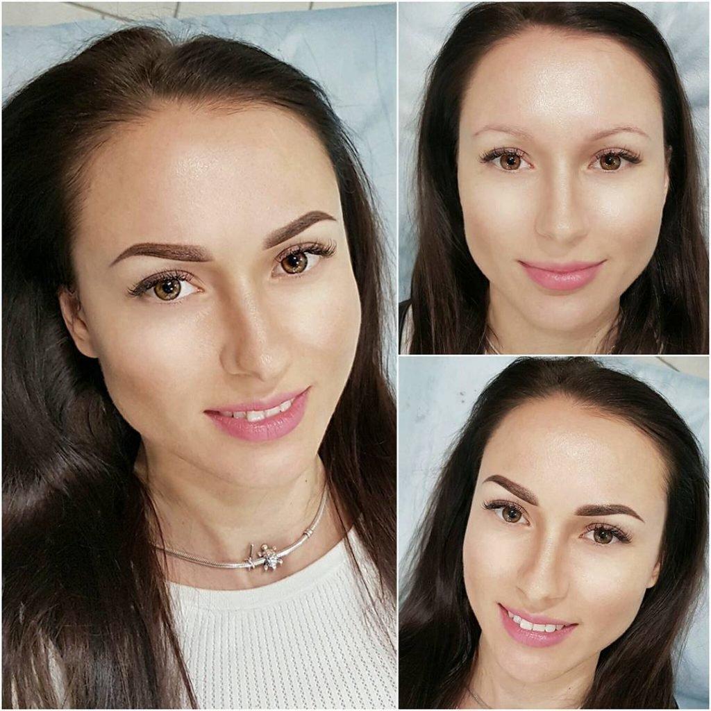Фото до и после1