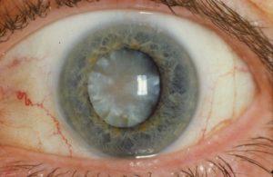 Что такое терминальная глаукома