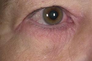 Шелушение кожи под глазами thumbnail