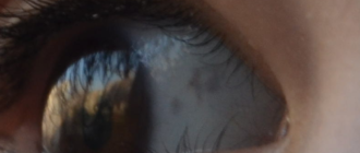 Серое пятно на белке глаза у ребенка