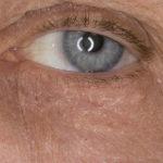 Что делать, если шелушится кожа под глазами
