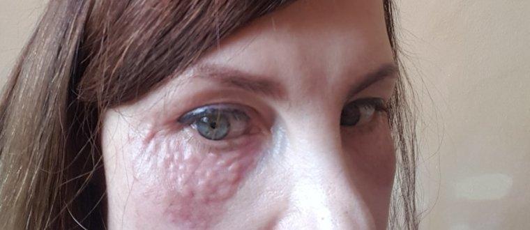 Отечность глаз после биоревитализации