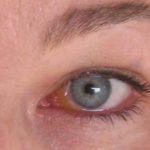 Как выявить герпес на глазах и чем лечить