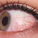 Разрыв конъюнктивы глаза