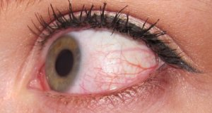 Травма конъюнктивы глаза лечение thumbnail