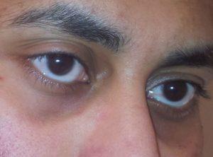 Черный круг вокруг глаза у мужчин thumbnail