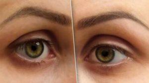 Как убрать мешки над глазами