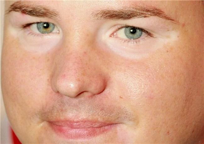 Вокруг глаз светлые круги thumbnail
