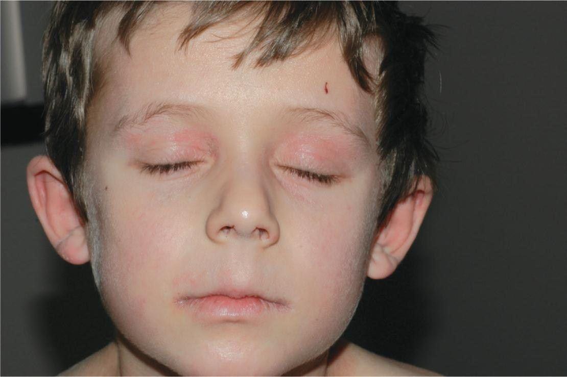 Терапия дерматита глаз у детей
