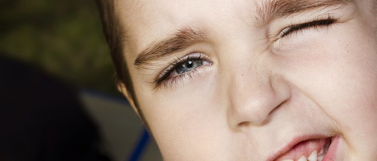 Ребенок прищуривается на один глаз