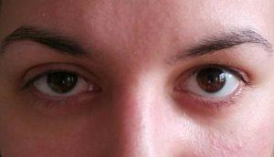 Что делать, если разные веки глаз