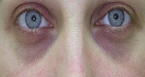Причины синяков под глазами