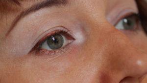 Белые круги и пятна вокруг глаз