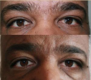 до и после удалению птеригиума