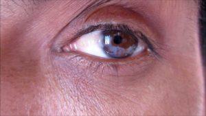 глаз зарастает пленкой