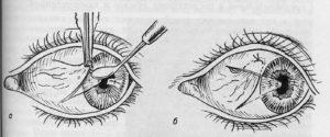 хирургическое иссечение птеригиума