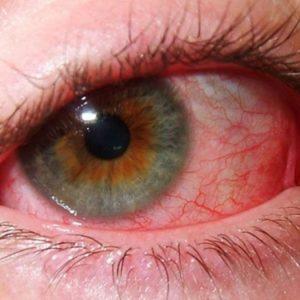 ревматизм глаз