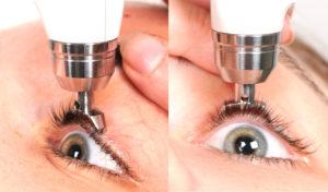 Электронная тонография глаза