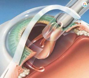 операция удаления катаракты
