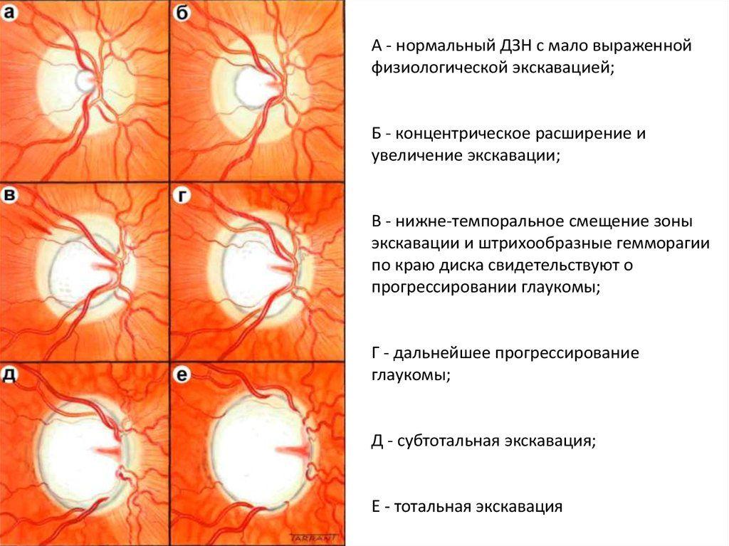 Экскавация диска зрительного нерва